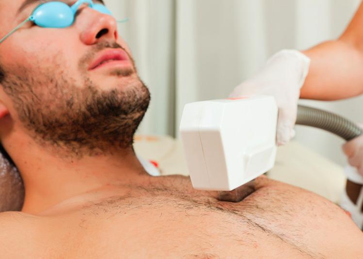IPL – Dauerhafte Haarentfernung – Brusthaare